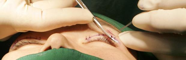 Oculoplastía