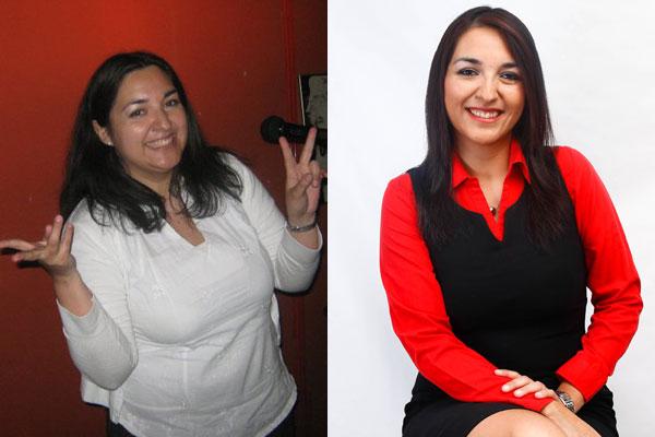 perdida de peso con la manga gastrica