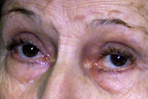 Del hinchada alrededor y roja área ojo