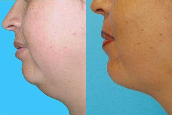 Conoce un nuevo método de liposucción menos invasivo