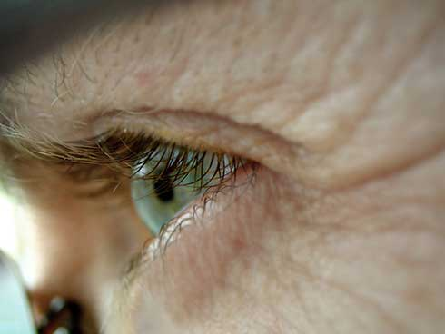 retinol, arrugas