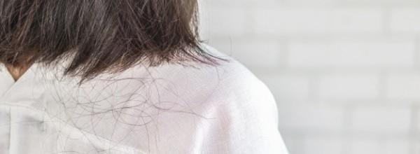 mujer-problema-caida-cabello-caida_34670-557